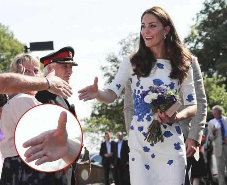 Kate e il cerotto onnipresente. Che succede alle mani della duchessa di Cambridge?